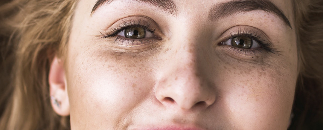 Pelle sensibile, come prendercene cura